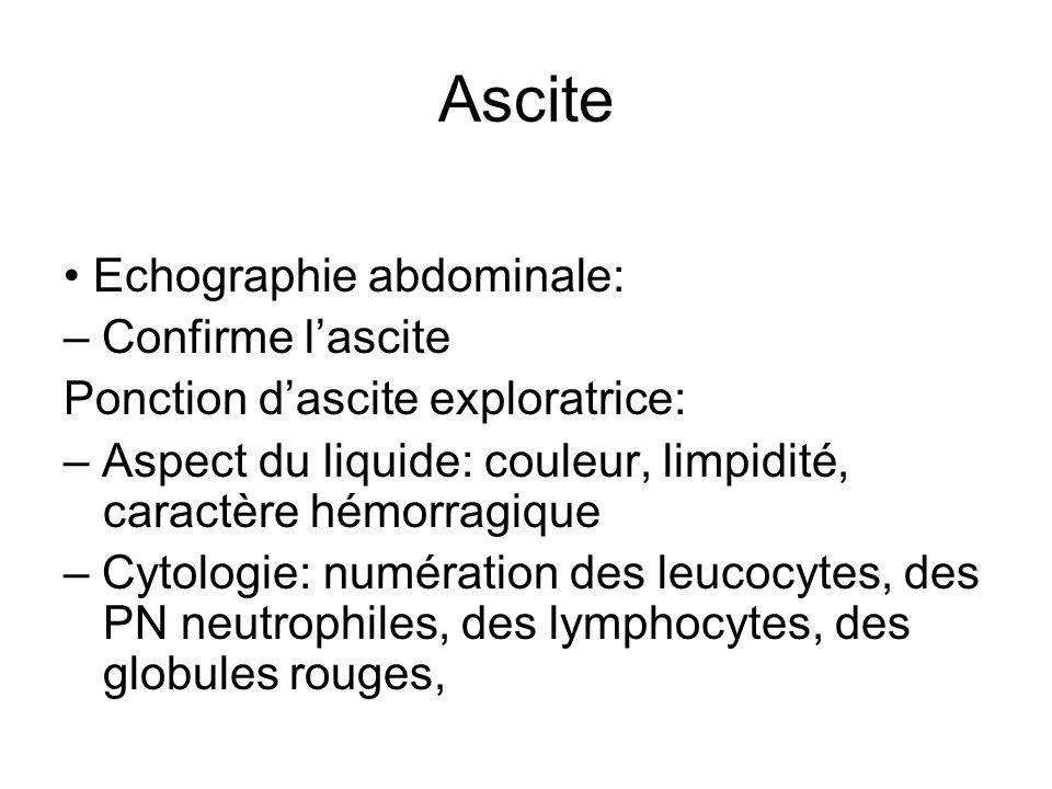 Ascite Echographie abdominale: – Confirme lascite Ponction dascite exploratrice: – Aspect du liquide: couleur, limpidité, caractère hémorragique – Cyt