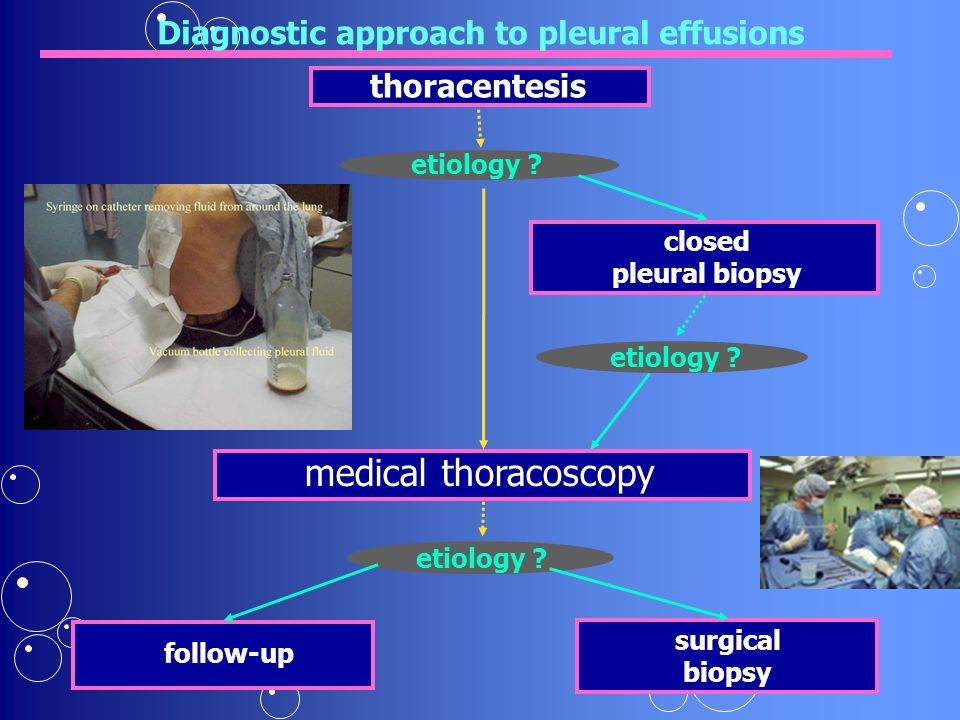 Diagnostic approach to pleural effusions follow-up closed pleural biopsy thoracentesis etiology .