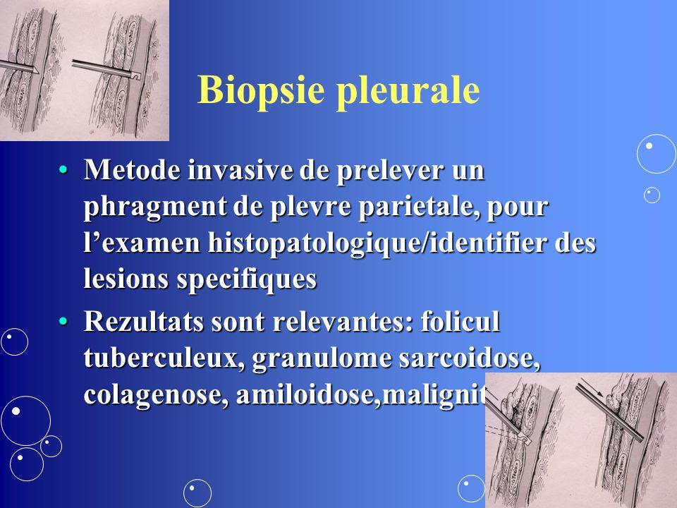 Biopsie pleurale Metode invasive de prelever un phragment de plevre parietale, pour lexamen histopatologique/identifier des lesions specifiquesMetode invasive de prelever un phragment de plevre parietale, pour lexamen histopatologique/identifier des lesions specifiques Rezultats sont relevantes: folicul tuberculeux, granulome sarcoidose, colagenose, amiloidose,maligniteRezultats sont relevantes: folicul tuberculeux, granulome sarcoidose, colagenose, amiloidose,malignite