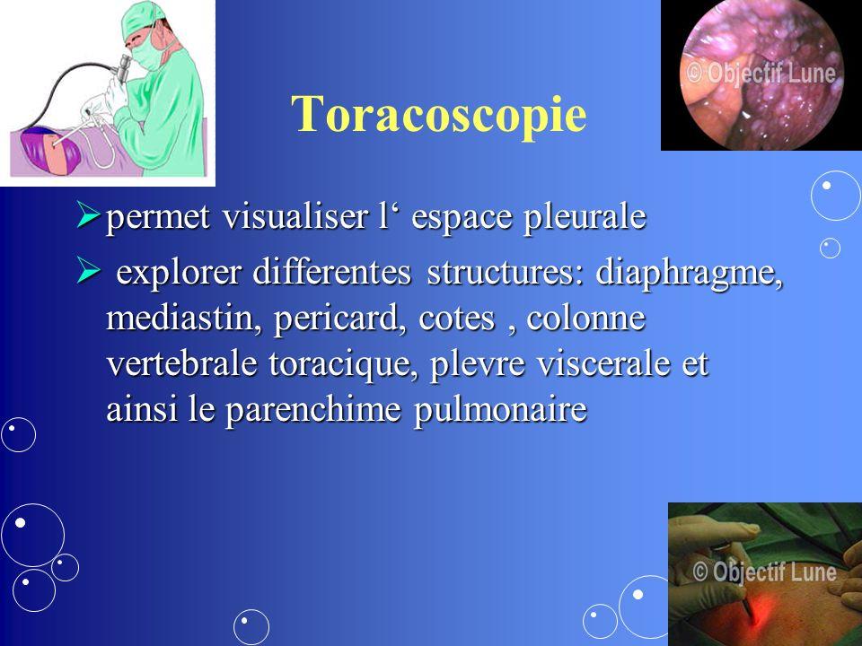 Toracoscopie permet visualiser l espace pleurale permet visualiser l espace pleurale explorer differentes structures: diaphragme, mediastin, pericard, cotes, colonne vertebrale toracique, plevre viscerale et ainsi le parenchime pulmonaire explorer differentes structures: diaphragme, mediastin, pericard, cotes, colonne vertebrale toracique, plevre viscerale et ainsi le parenchime pulmonaire