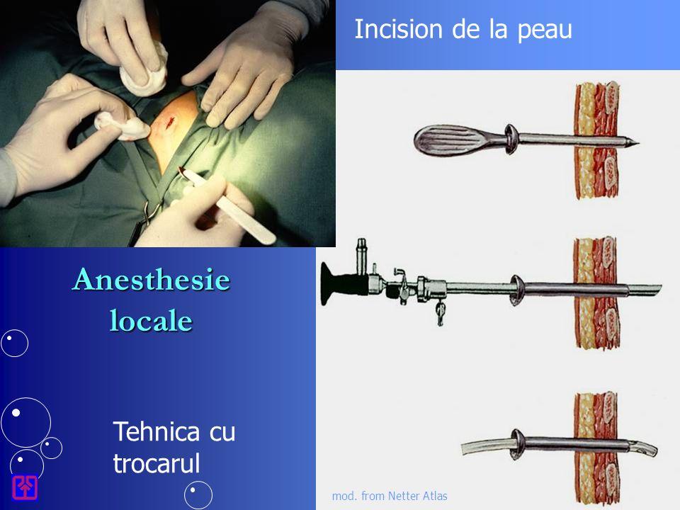 Incision de la peau Tehnica cu trocarul mod. from Netter Atlas Anesthesie locale