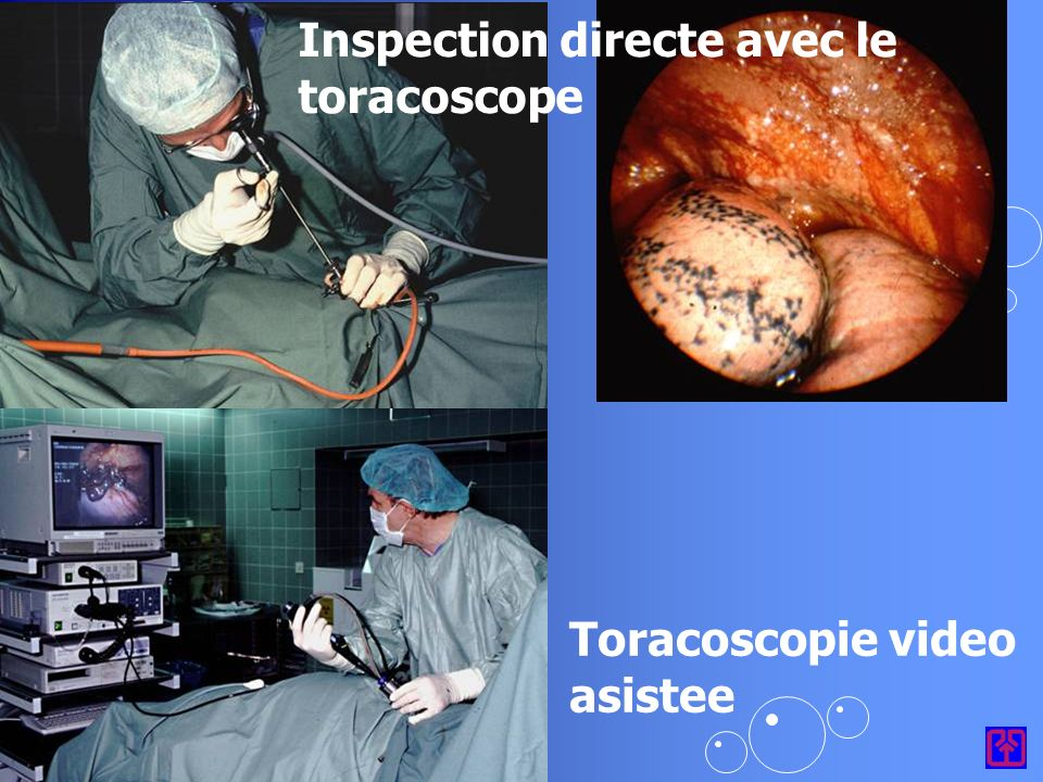 Inspection directe avec le toracoscope Toracoscopie video asistee