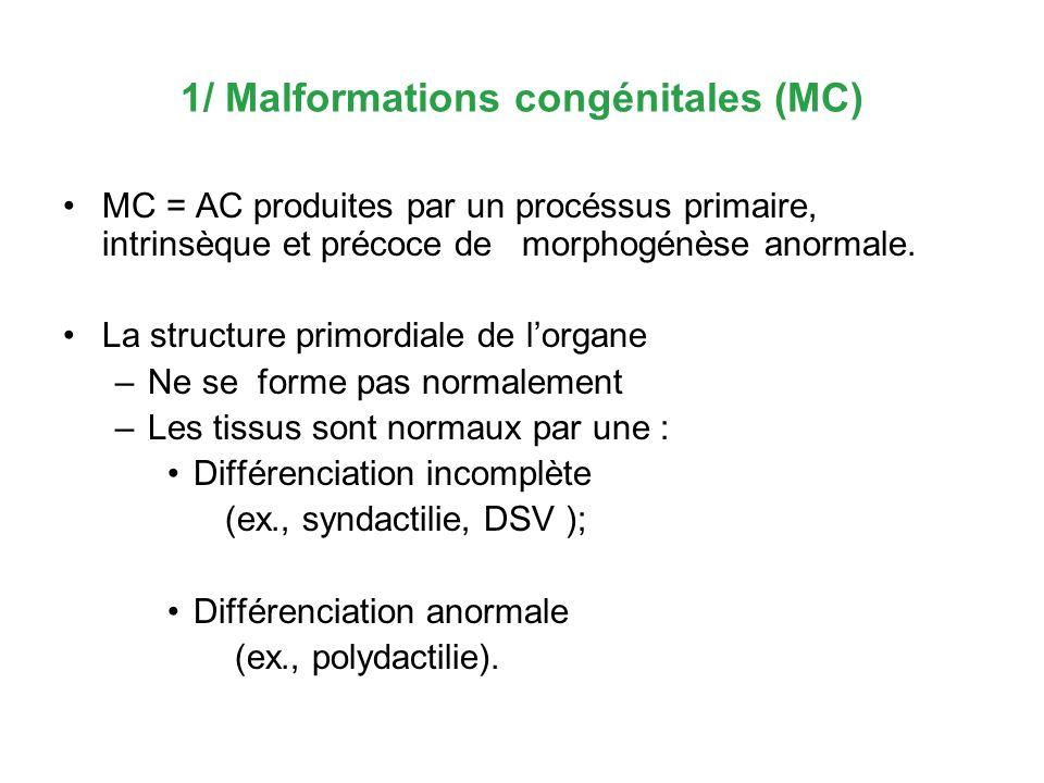 1/ Malformations congénitales (MC) MC = AC produites par un procéssus primaire, intrinsèque et précoce de morphogénèse anormale. La structure primordi