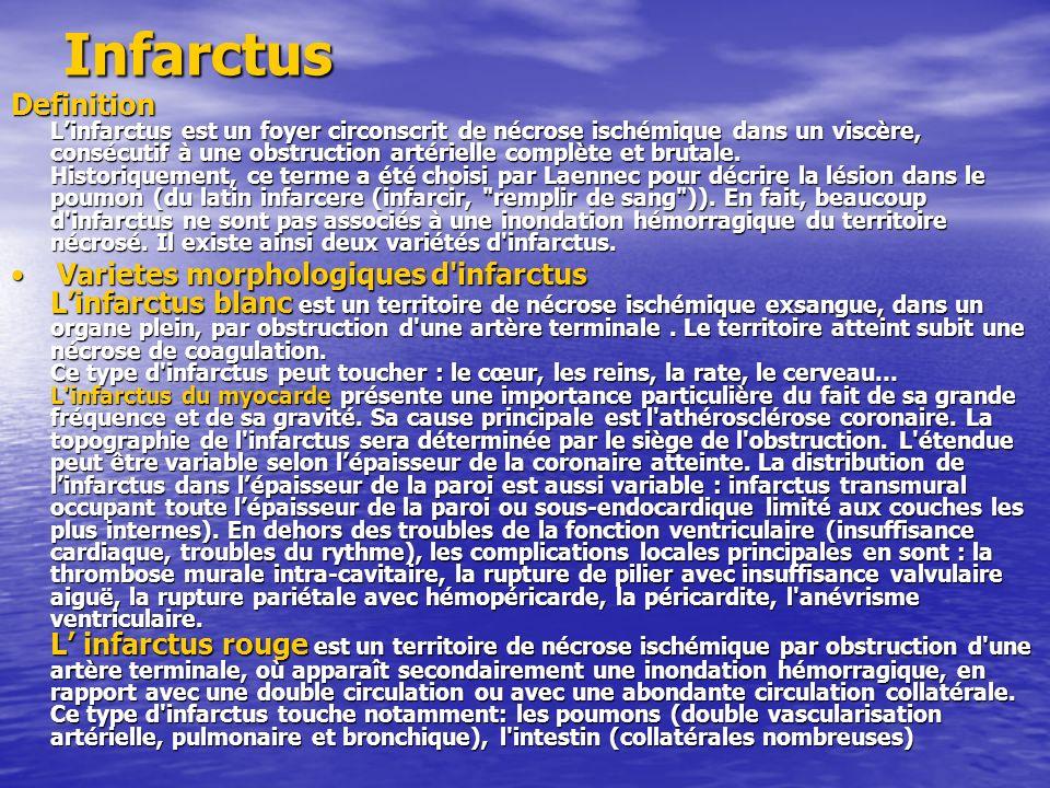 Infarctus Definition Linfarctus est un foyer circonscrit de nécrose ischémique dans un viscère, consécutif à une obstruction artérielle complète et br