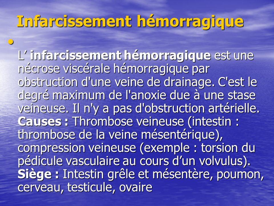 Infarcissement hémorragique L infarcissement hémorragique est une nécrose viscérale hémorragique par obstruction d'une veine de drainage. C'est le deg