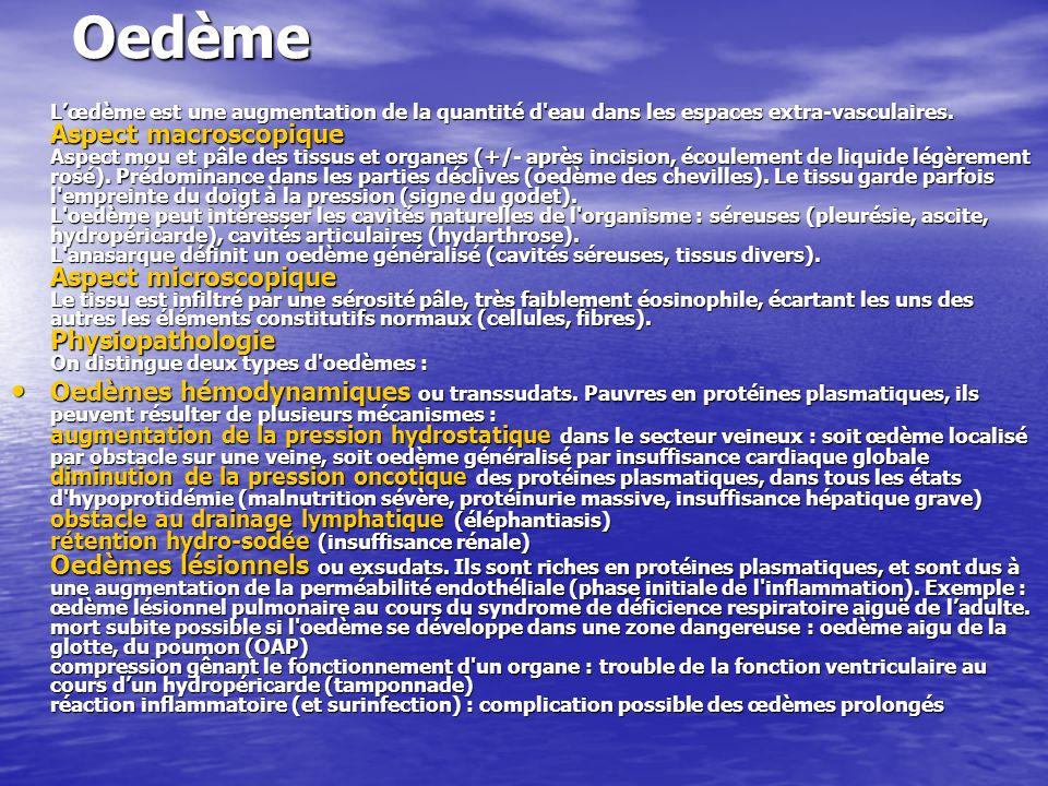 Ischémie Définition Lischémie est une diminution (ischémie relative) ou abolition (ischémie complète) de l apport sanguin artériel dans un territoire limité de l organisme.