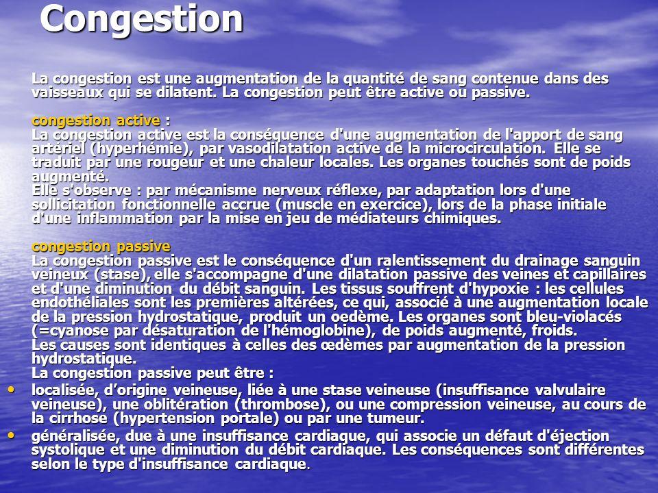 Congestion La congestion est une augmentation de la quantité de sang contenue dans des vaisseaux qui se dilatent. La congestion peut être active ou pa