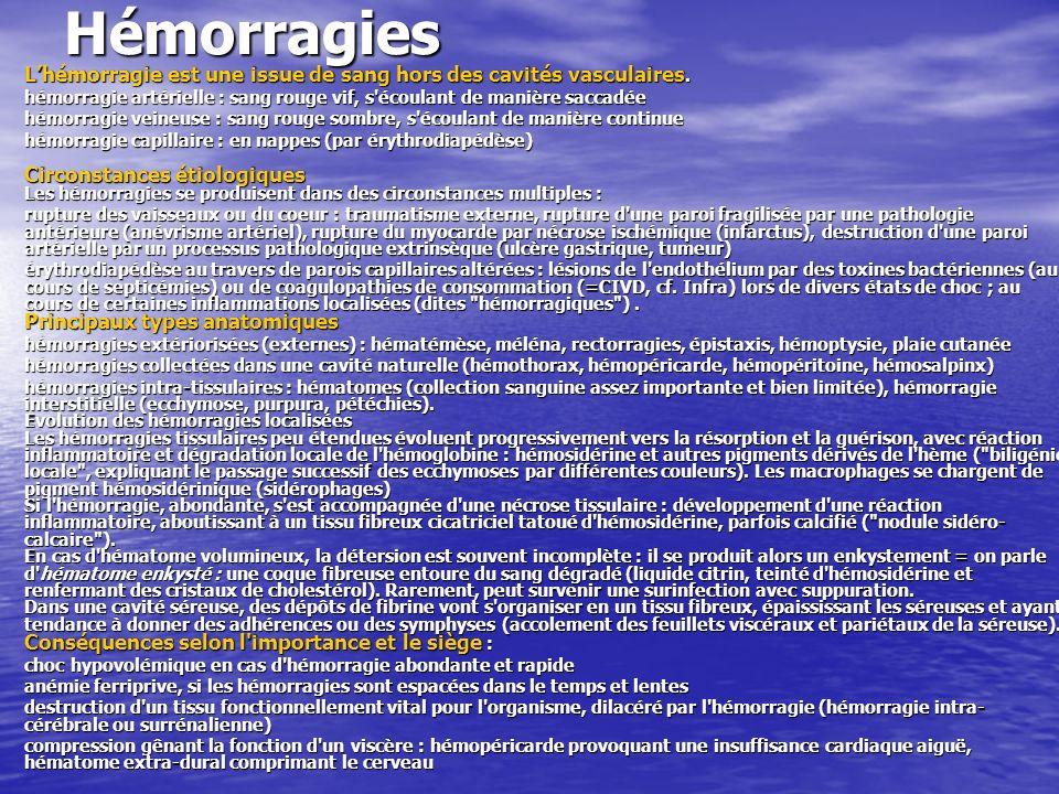 Hémorragies Lhémorragie est une issue de sang hors des cavités vasculaires. hémorragie artérielle : sang rouge vif, s'écoulant de manière saccadée hém