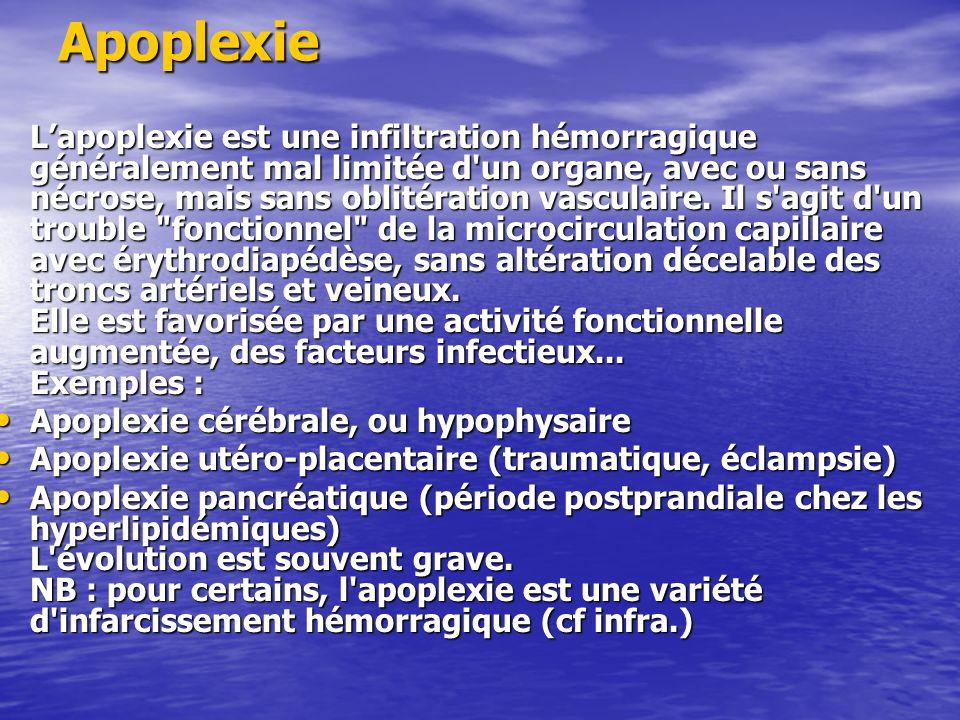 Apoplexie Lapoplexie est une infiltration hémorragique généralement mal limitée d'un organe, avec ou sans nécrose, mais sans oblitération vasculaire.