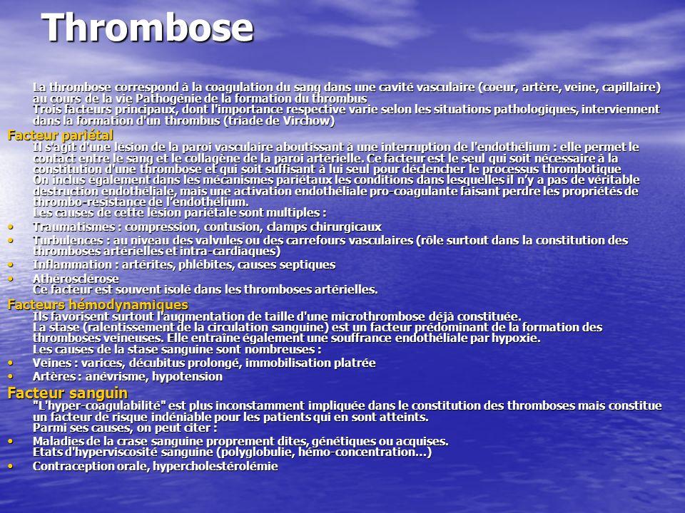 Thrombose La thrombose correspond à la coagulation du sang dans une cavité vasculaire (coeur, artère, veine, capillaire) au cours de la vie Pathogénie