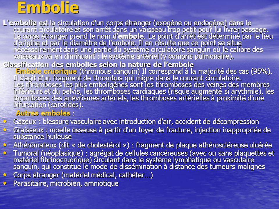 Embolie L'embolie est la circulation d'un corps étranger (exogène ou endogène) dans le courant circulatoire et son arrêt dans un vaisseau trop petit p