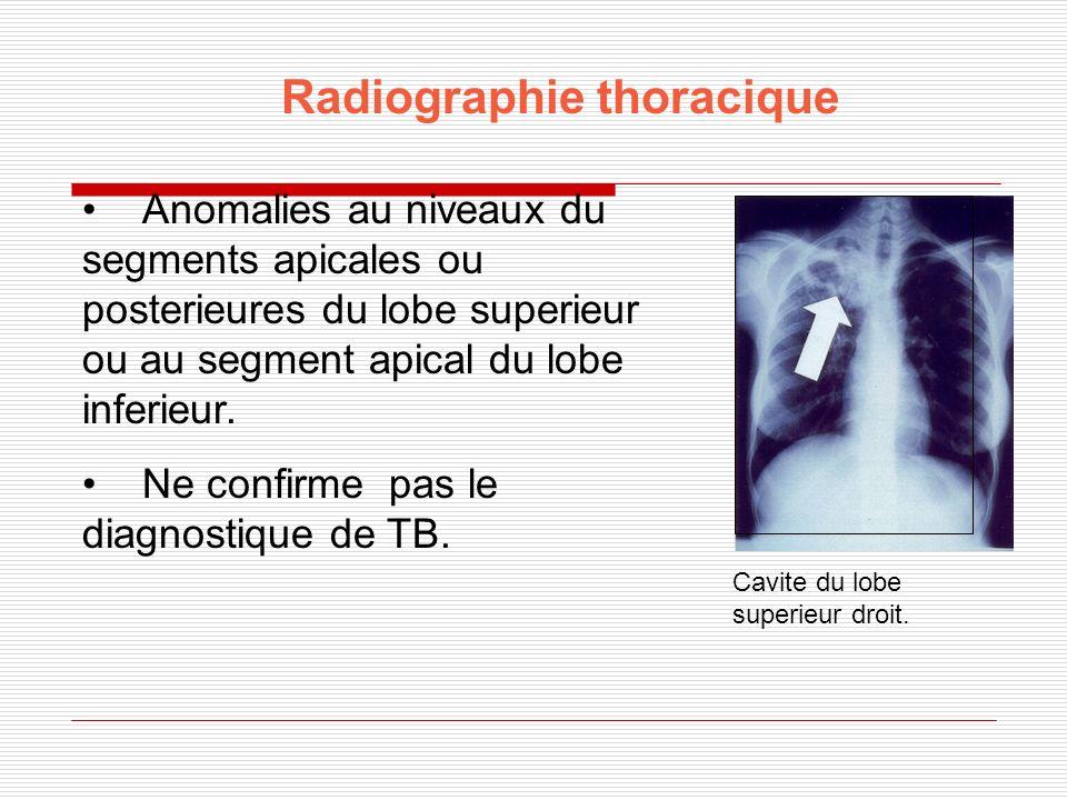 Radiographie thoracique Anomalies au niveaux du segments apicales ou posterieures du lobe superieur ou au segment apical du lobe inferieur. Ne confirm