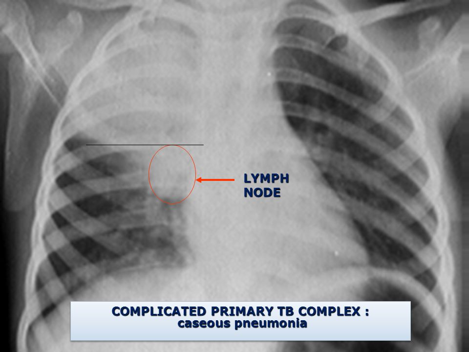 LYMPH NODE COMPLICATED PRIMARY TB COMPLEX : caseous pneumonia caseous pneumonia COMPLICATED PRIMARY TB COMPLEX : caseous pneumonia caseous pneumonia