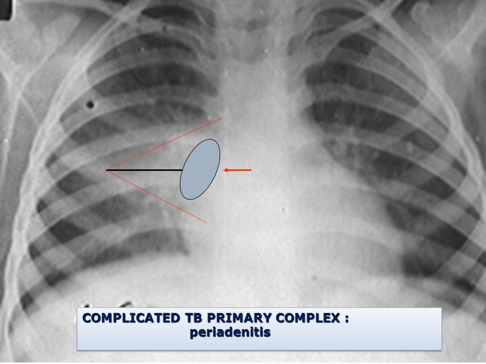 COMPLICATED TB PRIMARY COMPLEX : periadenitis periadenitis COMPLICATED TB PRIMARY COMPLEX : periadenitis periadenitis