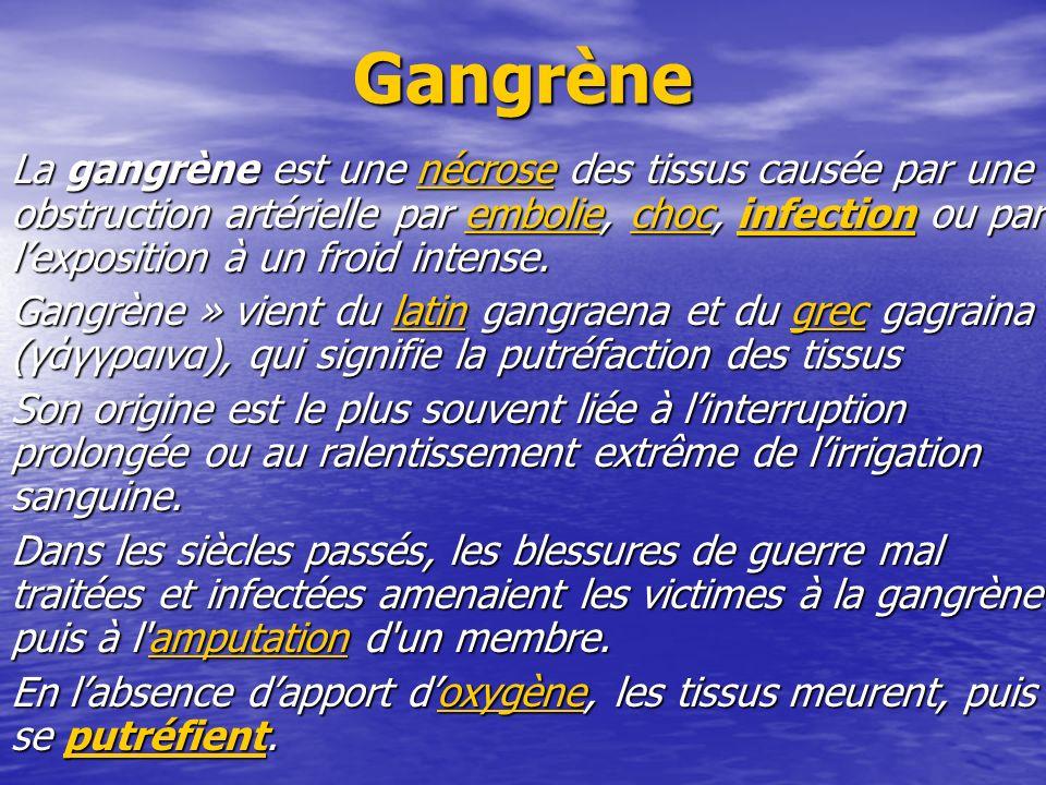 Gangrène La gangrène est une nécrose des tissus causée par une obstruction artérielle par embolie, choc, infection ou par lexposition à un froid inten