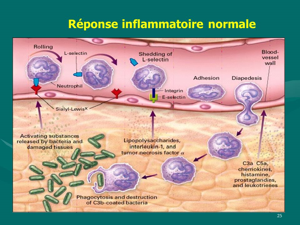 25 Réponse inflammatoire normale