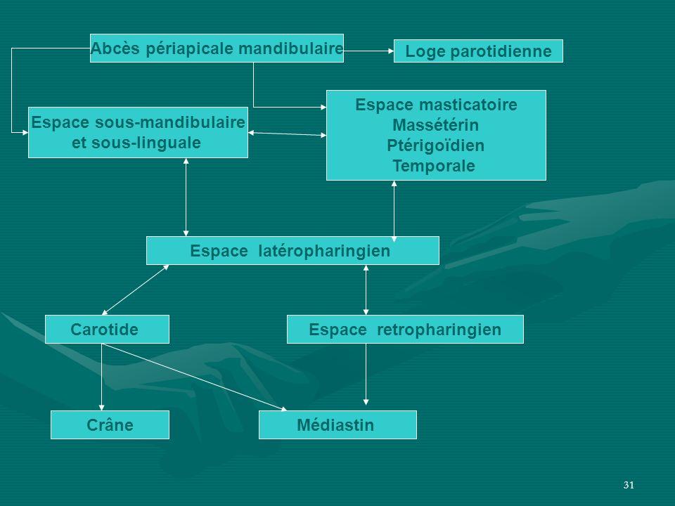 31 Abcès périapicale mandibulaire Loge parotidienne Espace sous-mandibulaire et sous-linguale Espace masticatoire Massétérin Ptérigoïdien Temporale Es