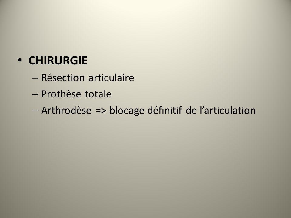 CHIRURGIE – Résection articulaire – Prothèse totale – Arthrodèse => blocage définitif de larticulation