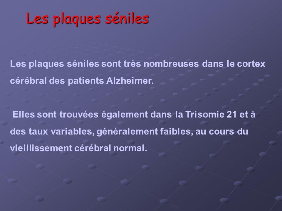 Les plaques séniles Les plaques séniles sont très nombreuses dans le cortex cérébral des patients Alzheimer. Elles sont trouvées également dans la Tri