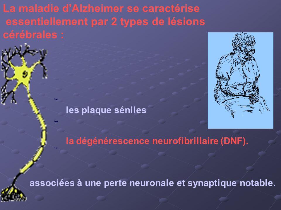 La maladie d'Alzheimer se caractérise essentiellement par 2 types de lésions cérébrales : les plaque séniles la dégénérescence neurofibrillaire (DNF).