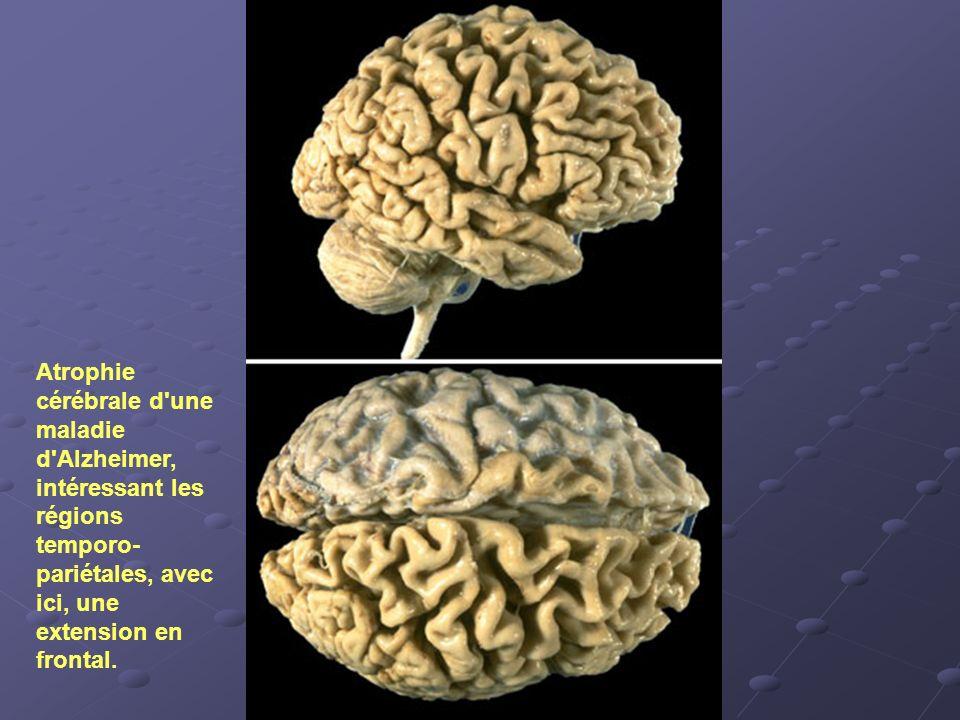 Atrophie cérébrale d'une maladie d'Alzheimer, intéressant les régions temporo- pariétales, avec ici, une extension en frontal.