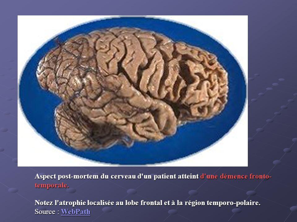 Aspect post-mortem du cerveau d'un patient atteint d'une démence fronto- temporale. Notez l'atrophie localisée au lobe frontal et à la région temporo-