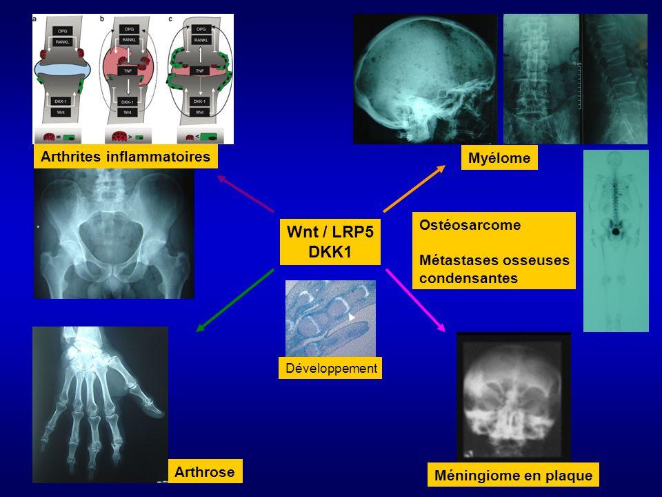 Wnt / LRP5 DKK1 Myélome Arthrites inflammatoires Arthrose Méningiome en plaque Développement Ostéosarcome Métastases osseuses condensantes