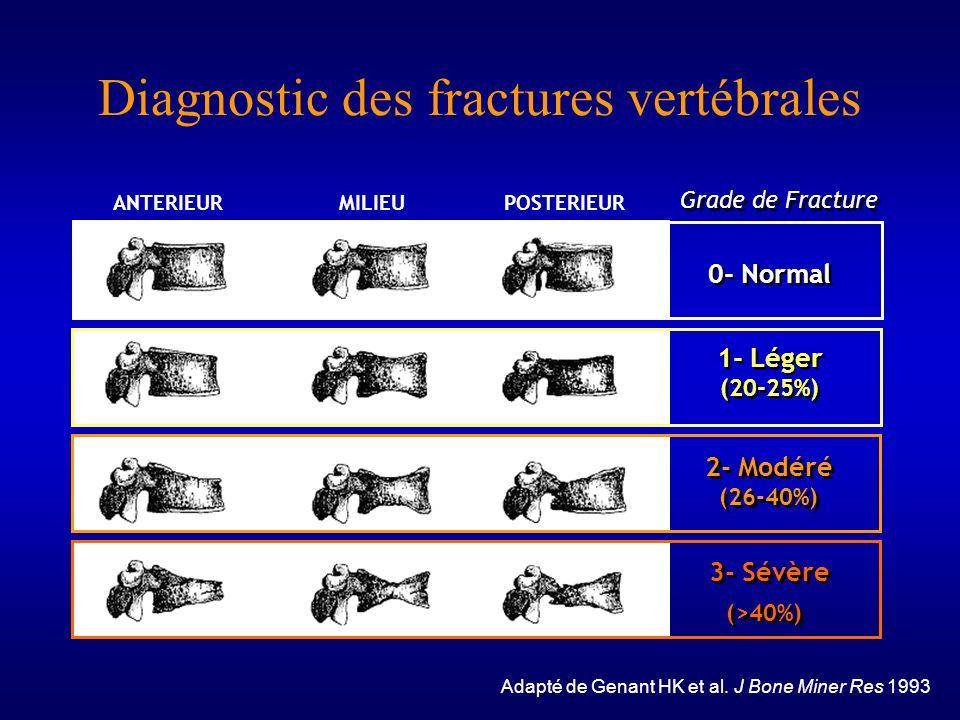 Diagnostic des fractures vertébrales 3- Sévère (>40%) 3- Sévère (>40%) Grade de Fracture 1- Léger (20-25%) 1- Léger (20-25%) 2- Modéré (26-40%) 2- Mod