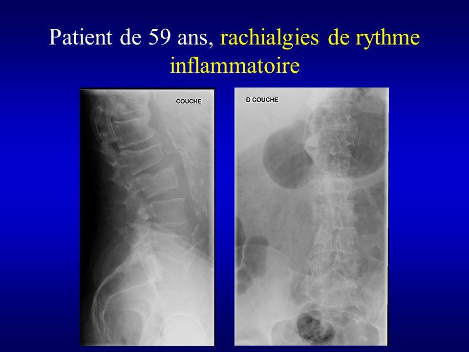 Patient de 59 ans, rachialgies de rythme inflammatoire