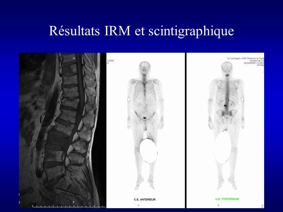Résultats IRM et scintigraphique
