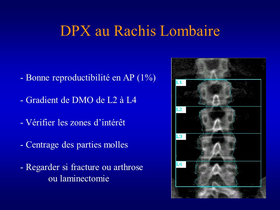 DPX au Rachis Lombaire - Bonne reproductibilité en AP (1%) - Gradient de DMO de L2 à L4 - Vérifier les zones dintérêt - Centrage des parties molles -