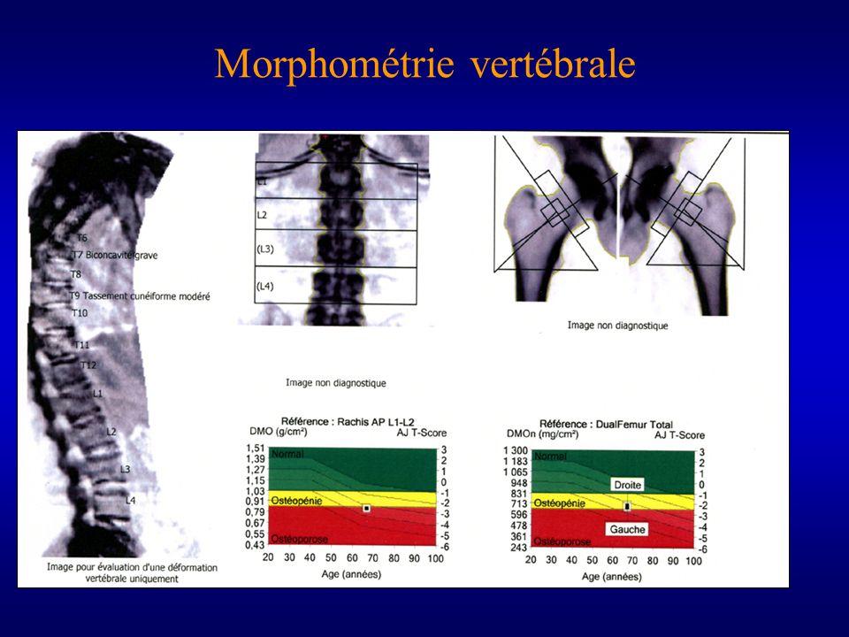 Morphométrie vertébrale