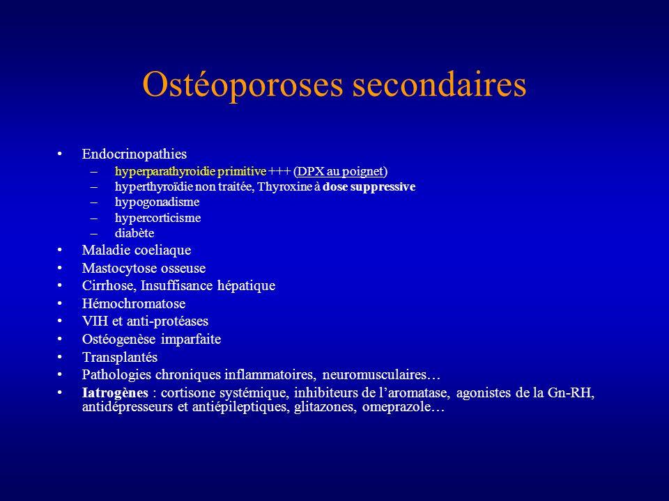 Ostéoporoses secondaires Endocrinopathies – hyperparathyroidie primitive +++ (DPX au poignet) – hyperthyroïdie non traitée, Thyroxine à dose suppressi