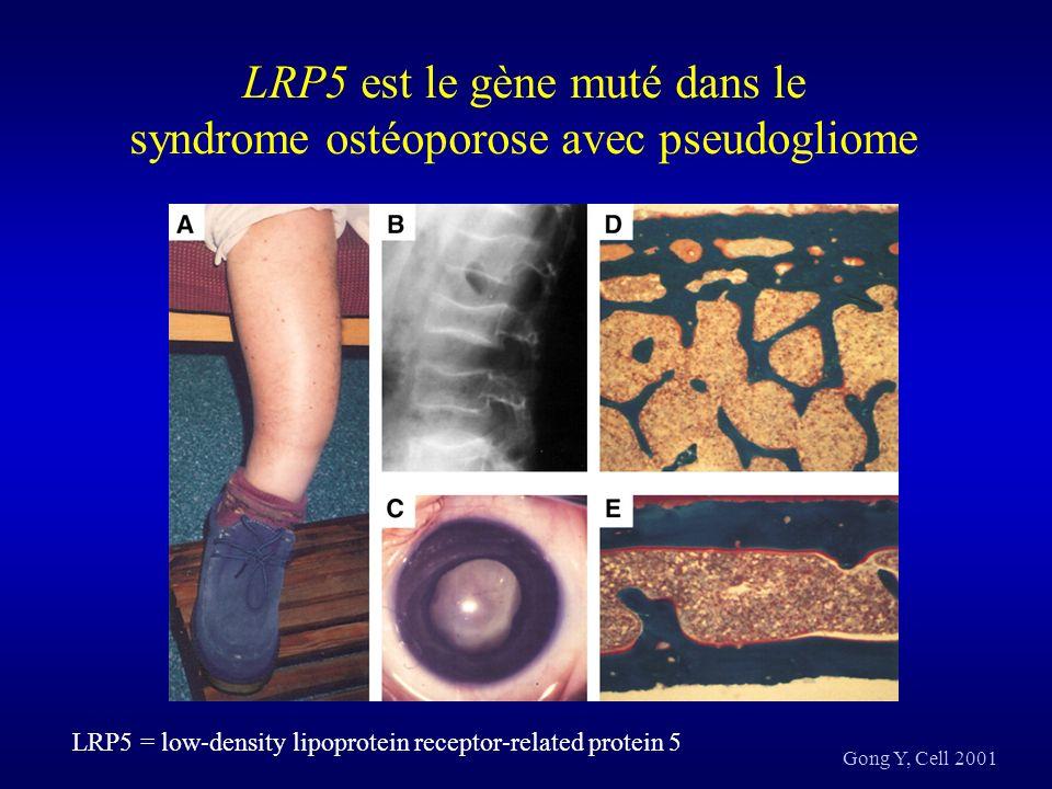 Kato M, J Cell Biol. 2002 Gènes régulateurs du pic de masse osseuse : LRP5