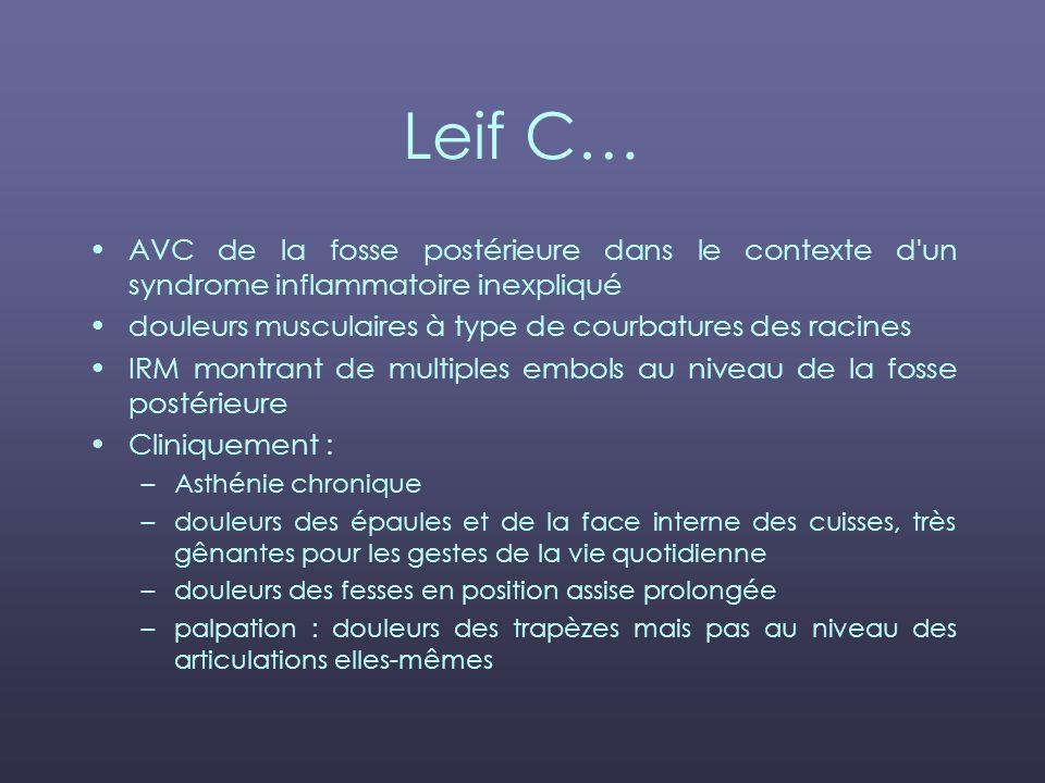 Leif C… AVC de la fosse postérieure dans le contexte d'un syndrome inflammatoire inexpliqué douleurs musculaires à type de courbatures des racines IRM