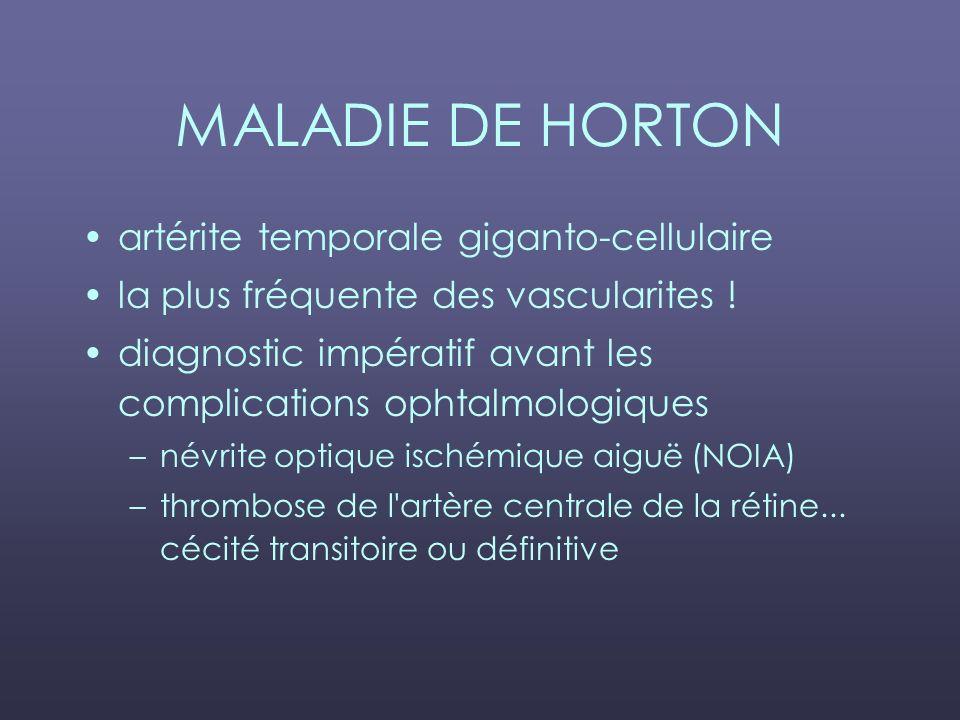 MALADIE DE HORTON artérite temporale giganto-cellulaire la plus fréquente des vascularites ! diagnostic impératif avant les complications ophtalmologi
