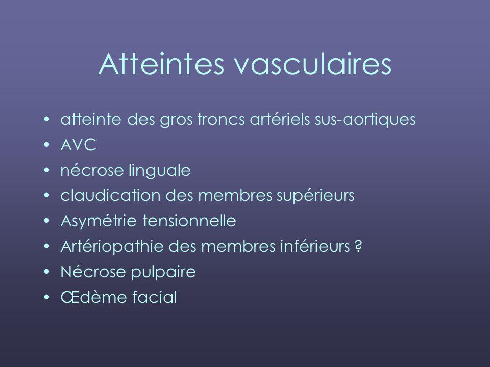 Atteintes vasculaires atteinte des gros troncs artériels sus-aortiques AVC nécrose linguale claudication des membres supérieurs Asymétrie tensionnelle