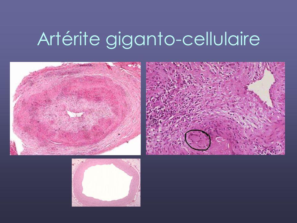 Artérite giganto-cellulaire
