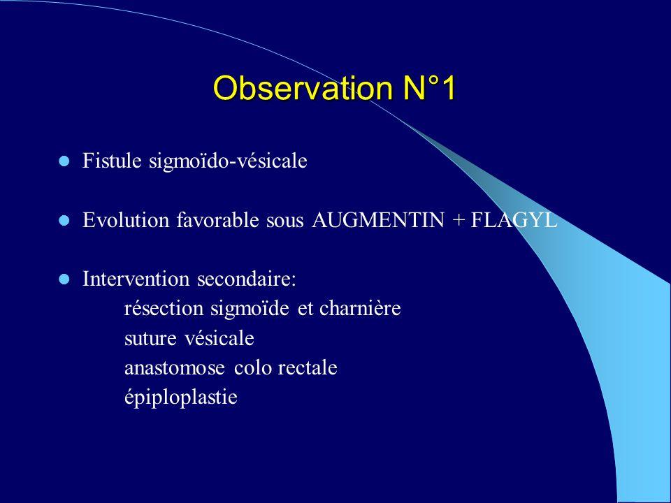 Observation N°1 Fistule sigmoïdo-vésicale Evolution favorable sous AUGMENTIN + FLAGYL Intervention secondaire: résection sigmoïde et charnière suture vésicale anastomose colo rectale épiploplastie