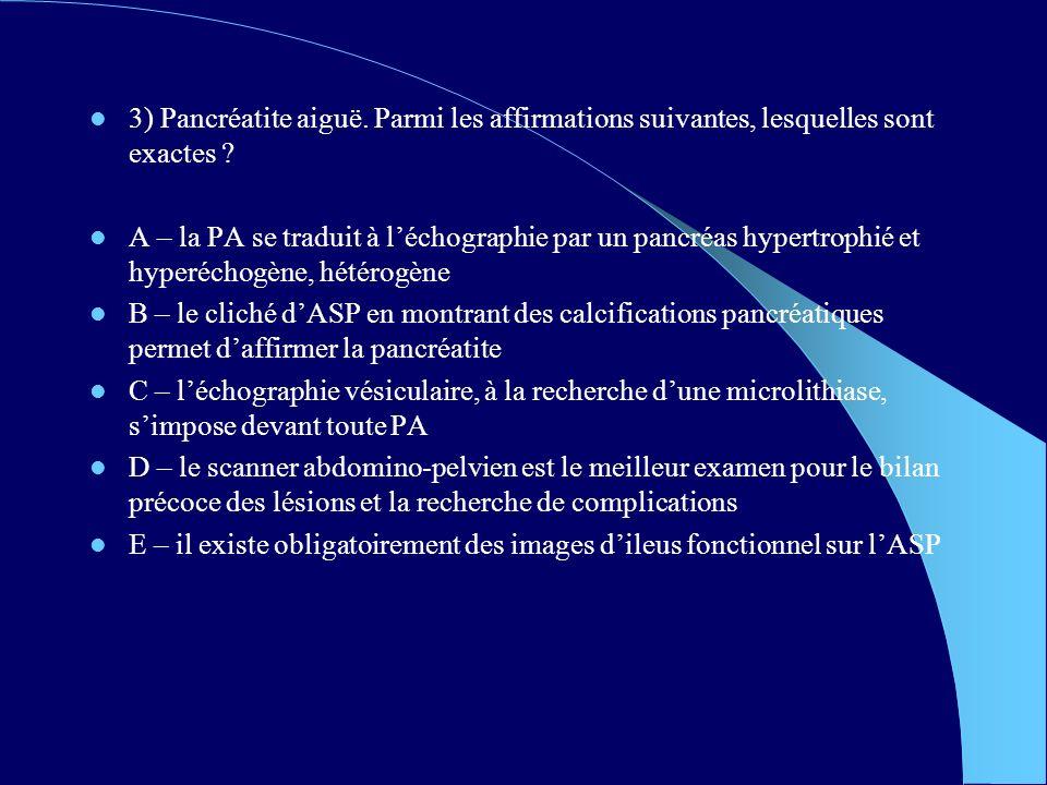 4) Indiquer la ou les propositions exactes dans lappendicite aiguë : A – peut évoluer vers un abcès de la FID B – donne parfois une occlusion du grêle C – lhyperleucocytose peut être absente D – doit dabord être refroidie par des antibiotiques et des antispasmodiques E – doit être opérée en urgence