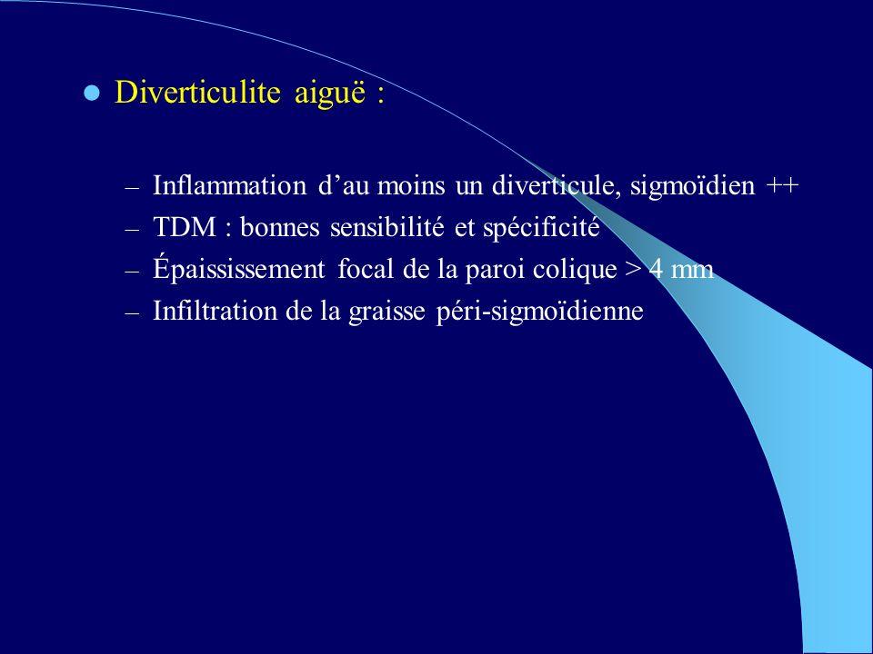 Diverticulite aiguë : – Inflammation dau moins un diverticule, sigmoïdien ++ – TDM : bonnes sensibilité et spécificité – Épaississement focal de la paroi colique > 4 mm – Infiltration de la graisse péri-sigmoïdienne