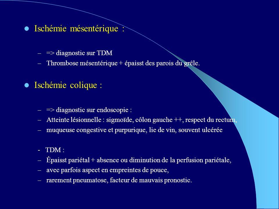 Ischémie mésentérique : – => diagnostic sur TDM – Thrombose mésentérique + épaisst des parois du grêle.