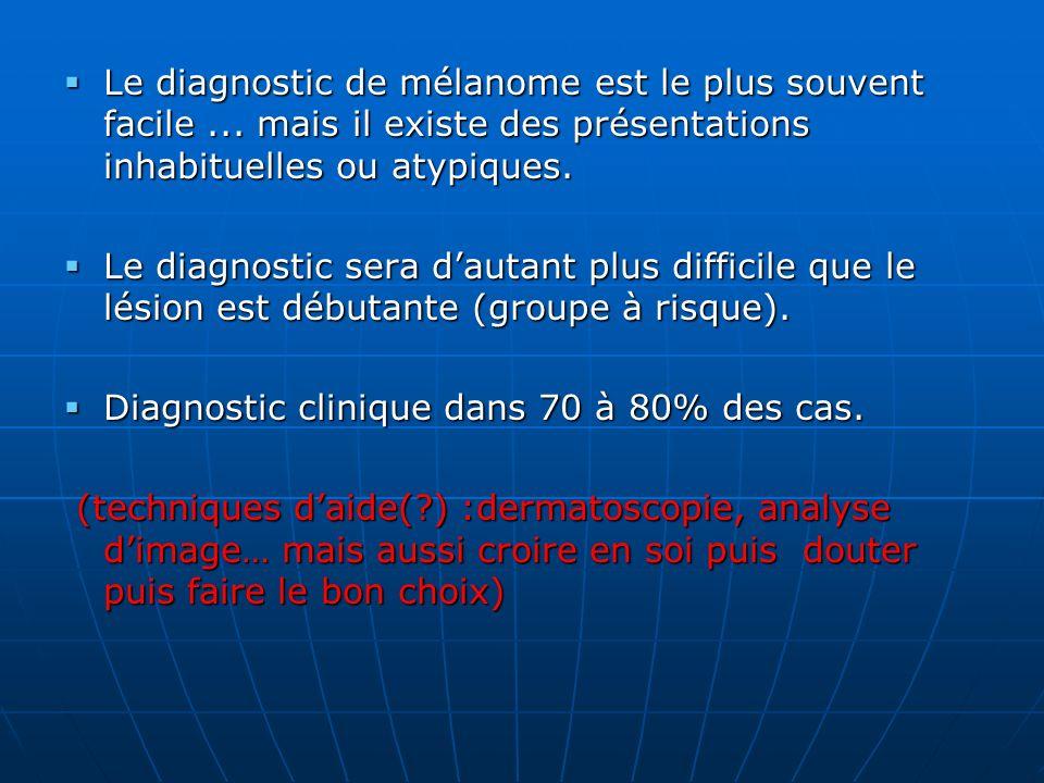 Le diagnostic de mélanome est le plus souvent facile... mais il existe des présentations inhabituelles ou atypiques. Le diagnostic de mélanome est le