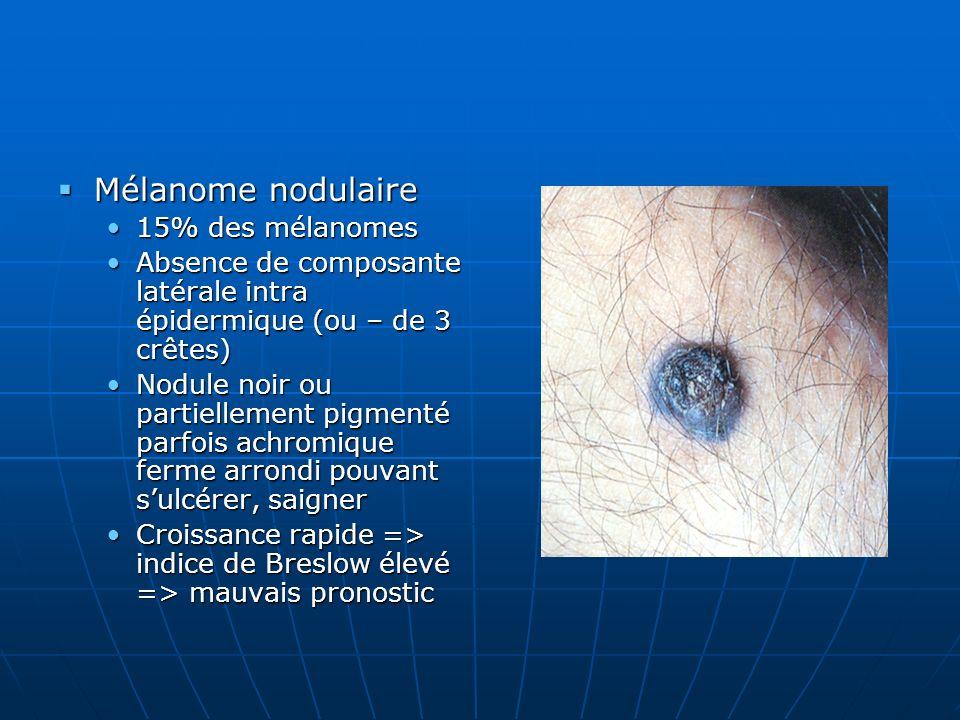 Mélanome nodulaire Mélanome nodulaire 15% des mélanomes15% des mélanomes Absence de composante latérale intra épidermique (ou – de 3 crêtes)Absence de