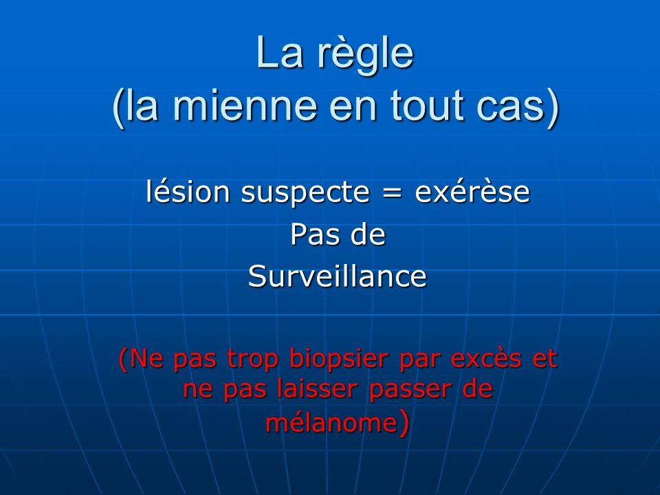 La règle (la mienne en tout cas) lésion suspecte = exérèse Pas de Surveillance (Ne pas trop biopsier par excès et ne pas laisser passer de mélanome )