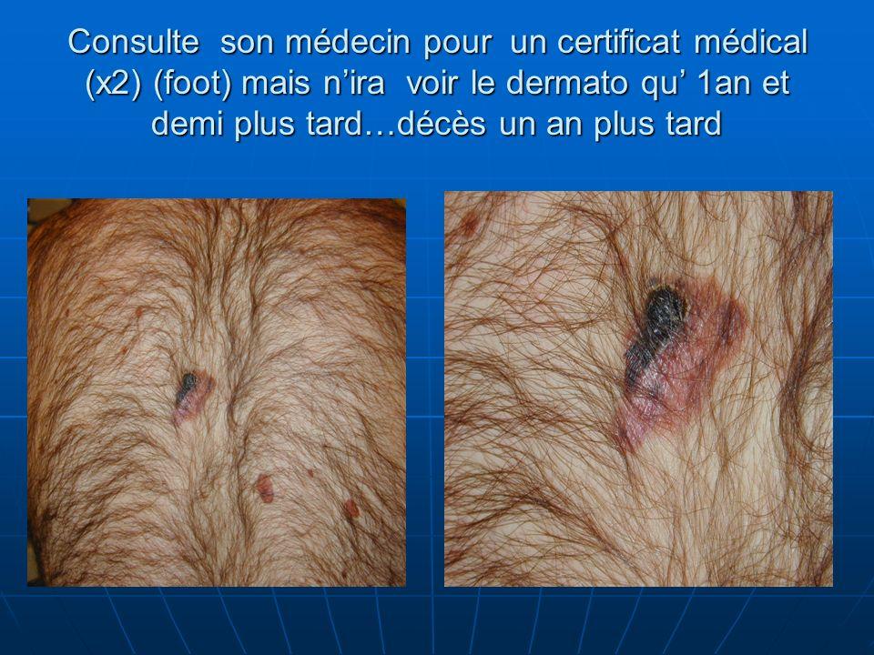 Consulte son médecin pour un certificat médical (x2) (foot) mais nira voir le dermato qu 1an et demi plus tard…décès un an plus tard
