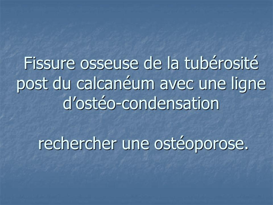 Fissure osseuse de la tubérosité post du calcanéum avec une ligne dostéo-condensation rechercher une ostéoporose.