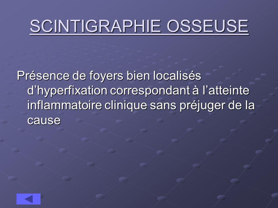 SCINTIGRAPHIE OSSEUSE Présence de foyers bien localisés dhyperfixation correspondant à latteinte inflammatoire clinique sans préjuger de la cause
