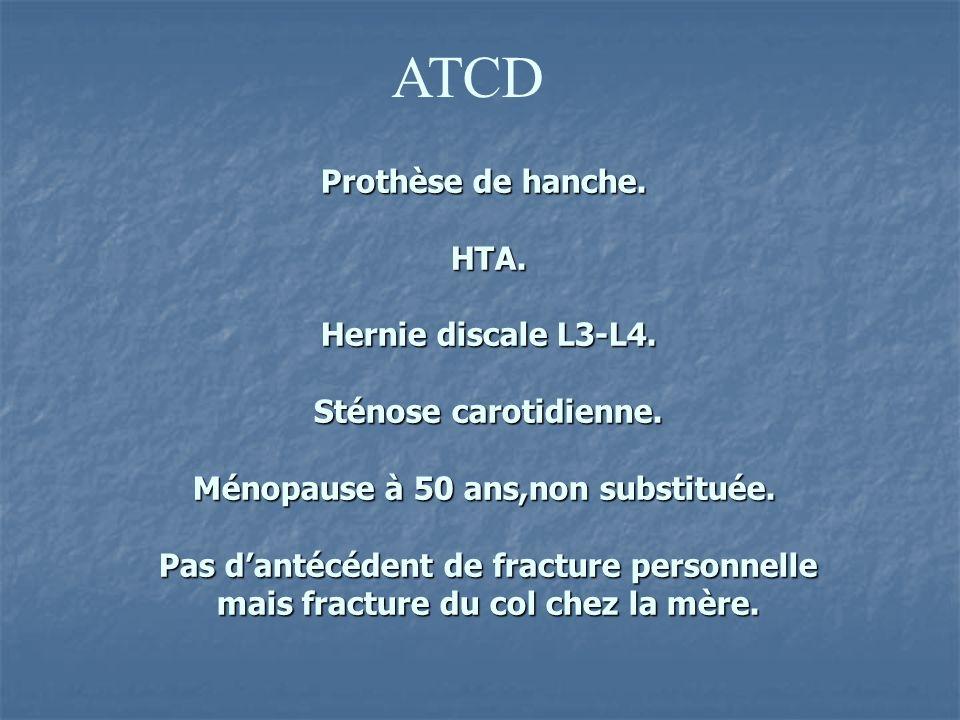 ATCD Prothèse de hanche. HTA. Hernie discale L3-L4. Sténose carotidienne. Ménopause à 50 ans,non substituée. Pas dantécédent de fracture personnelle m