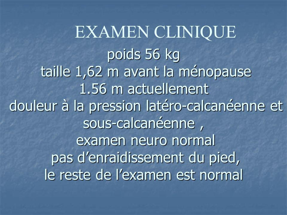 poids 56 kg taille 1,62 m avant la ménopause 1.56 m actuellement douleur à la pression latéro-calcanéenne et sous-calcanéenne, examen neuro normal pas